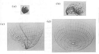 Ni-Ti (shape-memory alloys)